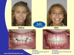 Alyssa Orthodontics, Portsmouth, King Charles, Photos, Pictures, Cake Smash Pictures