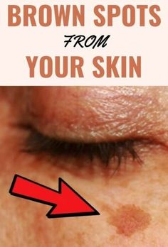 This Is What Happens After Applying Baking Soda Under Your Eyes | by karim abrov | Medium Beauty Care, Beauty Skin, Beauty Tips, Beauty Hacks, Beauty Stuff, Diy Beauty, Beauty Products, Long Thick Eyelashes, Hair Threading