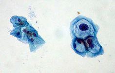 In ciuda larg raspanditei convingeri ca infectarea cu HPV este o forta letala, impotriva careia avem doar vaccinarea si asteptarea , atat stravechea medicina bazata pe ierburi, cat si protectiileimunitare inerente corpului nostru au fost abia recent confirmate ca avand o semnificativa putere impotriva acestei boli.  Un studiu revolutionar publicat in Jurnalul De Prevenire A Cancerului...