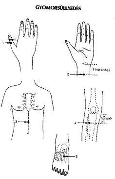 Akupunktura Acupuncture, Ayurveda, Arthritis, Massage, Math, Math Resources, Massage Therapy, Mathematics
