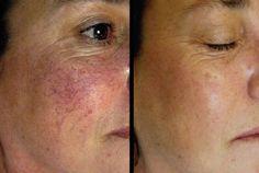 4 remèdes naturels pour traiter la couperose ou les varices sur le visage