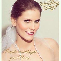 Este paquete es perfecto para las novias que quieren lucir una sonrisa brillante el día de su boda; incluye consulta iniciallimpieza dental profilaxis y blanqueamiento dental!!! las novias de @maquillartelaescuela reciben un descuento especial  para más información y citas contactar al 04124272248. #bridal #teethwhitening #odontologia #dentist #weddingday #novias #paqueteparanovias #bodasmcbo #mcbo #zulia by dravanessaruiz Our Teeth Whitening Page…