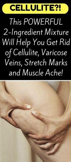 Simple methods to Get rid of Saggy Skin On Stomach - Lump Under My Skin - Hautbehandlung Cellulite Scrub, Cellulite Remedies, Reduce Cellulite, Cellulite Cream, Tighten Stomach, Tighten Loose Skin, Varicose Vein Remedy, Varicose Veins, Skin Bumps