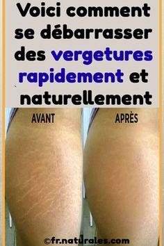 Voici comment se débarrasser des vergetures rapidement et naturellement #remede #naturel #peau