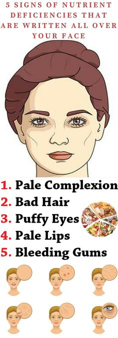 These 5 Signs Of Nutrient Deficiencies That Are Written All Over Your Face! : These 5 Signs Of Nutrient Deficiencies That Are Written All Over Your Face! Biotin Rich Foods, Pale Lips, Pale Face, Toenail Fungus Remedies, Vitamin Deficiency, Iodine Deficiency Symptoms, Healthy Exercise, Elderly Care, Puffy Eyes