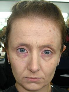 Blocking out eyebrows adds years. Red rimmed eyes sink sockets, receding hairline, skin spots.