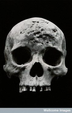 Alaskan Inuit (Eskimo) Skull, showing the effects of syphilis. Crane, Forensic Anthropology, Biological Anthropology, Skull Reference, Egyptian Mummies, Wellcome Collection, Dark Pictures, Archaeological Finds, Skulls And Roses