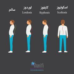 در چه مواقعی خمیدگی ستون مهرهها غیر طبیعیست؟  http://gsharifi.com/types-of-spine-curvature-disorders/  #ستون_فقرات #قوز_کمر #گودی_کمر #کمردرد #لوردوز #کایفوز #اسکولیوز