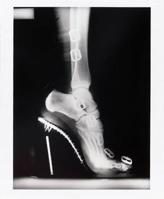 Helmut Newton had a  series of ads that were actually x-rays of the products (jewelry, shoes), directly comparing and contrasting the metal prongs and hinges to the bones and joints of the women wearing the baubles