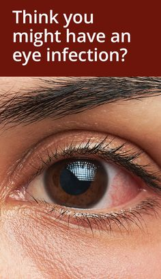 Tips To Keep Your Skin Young And Beautiful - Lifestyle Monster Eye Infection Symptoms, Viral Infection, Bacterial Infection, Pimples On Forehead, How To Get Rid Of Pimples, Acne Remedies, Young And Beautiful, Skin Care Regimen, Natural Remedies
