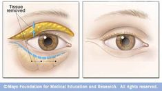 Thought about having eyelid surgery to repair droopy eyelids?