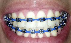 Blue power chain on traditional metal braces Balanced, bright teeth are an essential aspect in human aesthetics. The brightening procedure for white teeth is the therapy that dentists have used usuall Types Of Braces, Braces Tips, Braces Bands, Dental Braces, Teeth Braces, Power Chain Braces, Gold Braces, Fake Braces, Cute Braces Colors