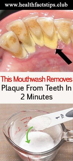 Shape For You | This mouthwash removes plaque from teeth in 2 minutes