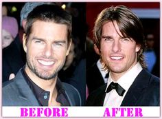 Tom Cruıse Plastic Surgery Before And After #TomCruisePlasticSurgery #TomCruise #lacocinadefrida
