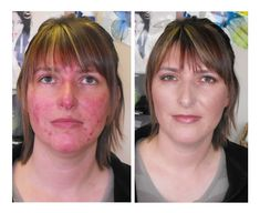 Skin Care Before and After | Best Mineral Makeup – Acne Skin Solutions – Total Help for Acne
