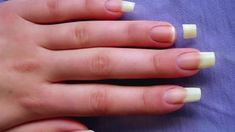 Fixing Cracked or Broken Nails White Spots On Nails, Cracked Nails, Nails Now, Special Nails, Nail Care Tips, Broken Nails, Nail Art Images, Brittle Nails, Nail Cuticle