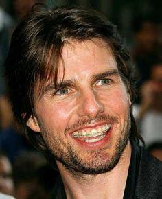 Tom Cruise con ortodoncia estetica
