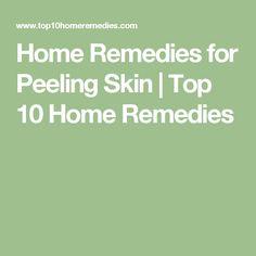 Home Remedies for Peeling Skin | Top 10 Home Remedies