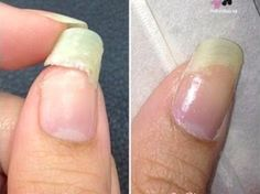 The worst thing is when I break my nails. To save my nail and not completely clip it off here's a tea bag repair treatment I do to prolong the life of my broken nail. Check out my DIY Tea Bag Nail Repair so simple and easy to do. Fix Broken Nail, Repair Broken Nail, Glue On Nails, Diy Nails, Fix Cracked Nail, Broken Finger, Split Nails, Beauty Tricks, Nailed It
