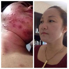 Great before and after Luminesce testimony.
