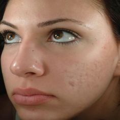 how to make make.up look smooth over acne scarring