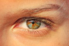 Sectoral heterochromia... I actually have this myself... Didn't know there was a word for it... Mine just isn't very noticeable