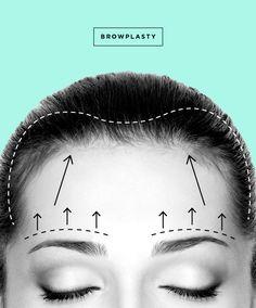 Estiramiento de Frente / Levantamiento de Cejas aka browplasty