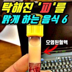 탁해진 '피를 맑게 해주는' 고지혈증에 좋은 음식 6