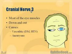 if it is paralyzed the eye will turn down and out, on that side, often severe ptosis (droopy upper lid), often a dilated pupil and loss of near vision in young people; Over 45 it's all ready Gone Cranial Nerve 3, Opthalmic Technician, Nerve Palsy, Eye Study, Eye Anatomy, Medical Intuitive, Graves Disease, Human Body Systems, Eyes