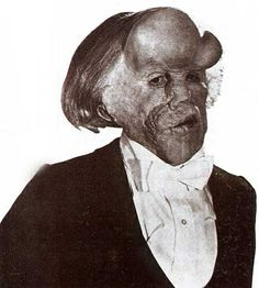This is not Joseph Merrick the Elephant Man, but rather actor John Hurt made up as him for the movie.