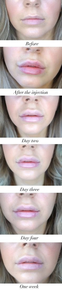 Lip fillers before a