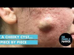 My BOOK, Put Your Best Face Forward, is on sale NOW at Barnes and Noble, [& The post A Cheeky Cyst& Piece by Piece appeared first on Pimple Popping Videos. Big Pimple, Cystic Pimple, Pimple Marks, Blackheads On Face, Pimples On Forehead, Doctor Pimple Popper, Sinus Headache Remedies, Homemade Pore Strips, Feltro