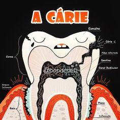 """A cárie dentária . Lembra que comentamos que a placa bacteriana se acumula no terço cervical em superfícies livres? Então na superfície oclusal ela se acumula na região de fóssulas e fissuras. Com o consumo desenfreado de açúcares as bactérias presentes nesta película irão fazer uso da sacarose como se fosse um """"combustível"""" para produzir ácidos. Esses ácidos causam a desmineralização do esmalte dentário sendo evidente quando um desequilíbrio entre a superfície dentária e a placa. Com a…"""