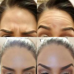 Botox before & after - 3 week difference at Mystique Medical Spa in Fresno, California
