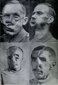 traumi facciali ww1