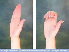 Mayo Clinic slide show of exercises for people with arthritis of the hand - *very good!