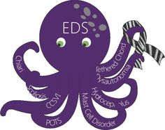 Ehlers Danlos Syndrome