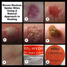 Brown Recluse Spider Bites by live w mcs, via Flickr                                                                                                                                                           Brown Recluse Spider Bites                 ..
