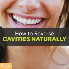 !!!!!!How to Reverse Cavities Naturally - Dr.Axe. So many good ideas!!!!!!