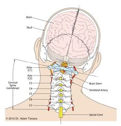 Upper Cervical Subluxation - checktheneck.com Human Body Anatomy, Human Anatomy And Physiology, Muscle Anatomy, Craniosacral Therapy, Spine Health, Medical Anatomy, Medical Science, Medical Information, Neck Pain