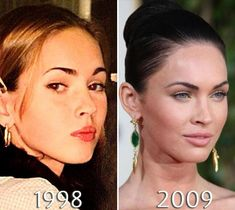 Megan Fox Plastic Surgery Before & After Photos Megan Fox Plastic Surgery, Plastic Surgery Before After, Double Eyelid, Eyelid Surgery, Before After Photo, Take That