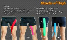 Muscle of Thigh #Ares #Tape #Taping #Kinesiology