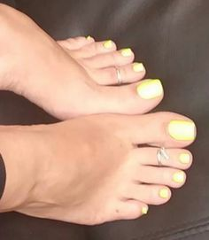 Absolutely gorgeous toes