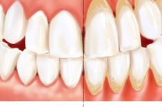 """Periodontitis is a disease that damages the gums and the entire """"structure"""" that holds our teeth together. The inflammation of the edge portion of the gums (gingivitis) is the early phase of the di… Teeth Whitening Remedies, Natural Teeth Whitening, Gum Disease Treatment, Heal Cavities, Gum Health, Oral Health, Dental Health, Teeth Care, Cosmetic Dentistry"""
