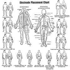 TENS unit electrode placement chart for different sports