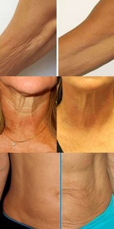 Wrinkled neck, flabby arms and loose thighs . - Wrinkled neck, flabby arms and loose thighs . Fitness Workouts, Face Care, Body Care, Skin Care, Herbal Remedies, Natural Remedies, Beauty Skin, Health And Beauty, Green Tea Drinks