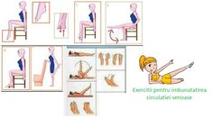 Exercitii pentru varice, varicose veins About Me Blog, Varicose Veins