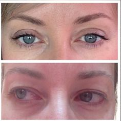 Before and after upper blepharoplasty with Professor Mark Ashton. Read her review here https://www.plasticsurgeryforum.com.au/directory/clinician/profile/mark-ashton#review #blepharoplasty #eyelidsurgery #beforeandafter #preop #preop #plasticsurgeon #plasticsurgery #psf_australia #plasticsurgerymakeover #plasticsurgeryforum #cosmeticsurgery #cosmeticprocedures #aesthetics