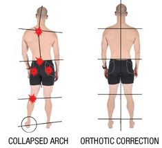 Orthotics, Shin Splints, runners knee, Adelaide Health Clinic Toronto hip problems runners