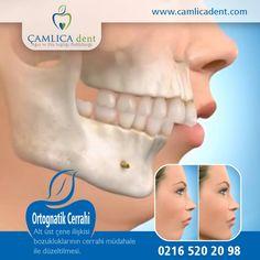 Çene Cerrahi ve Estetik Müdahaleler... www.camlicadent.com | 0216 520 20 98